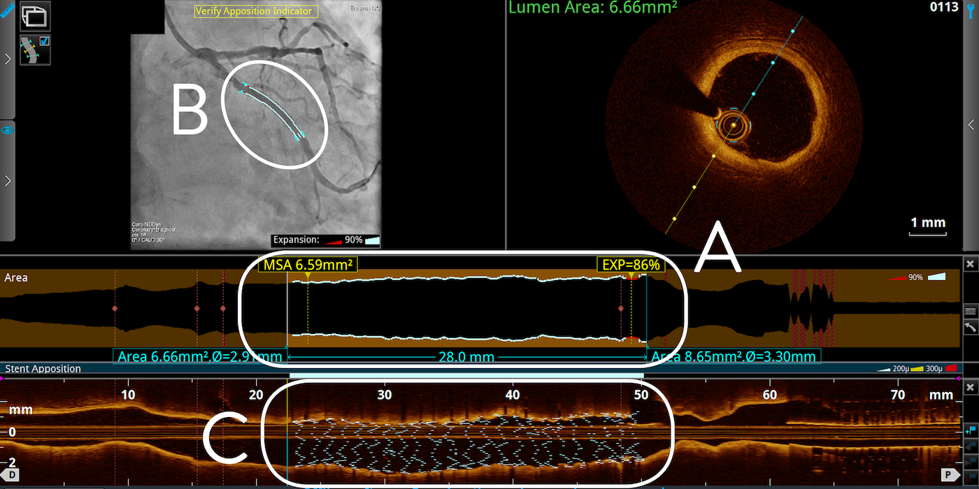 OCT Tapered Stent Expansion