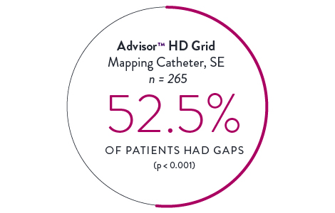 HD Grid Mapping Cathethers 52.5%