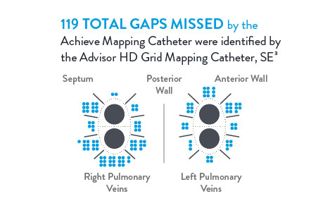 12 total gaps missed by the Achieve Mapping Catheter were identified by the Advisor HD Grid Mapping Catheter, SE.