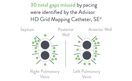30 total gaps missed by pacing were identified by the Advisor HD Grid Mapping Catheter, SE.