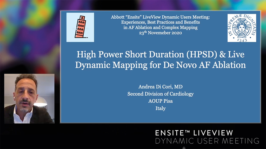 Live Dynamic Visualization of the Pulmonary Veins and High Power Short Duration ablation