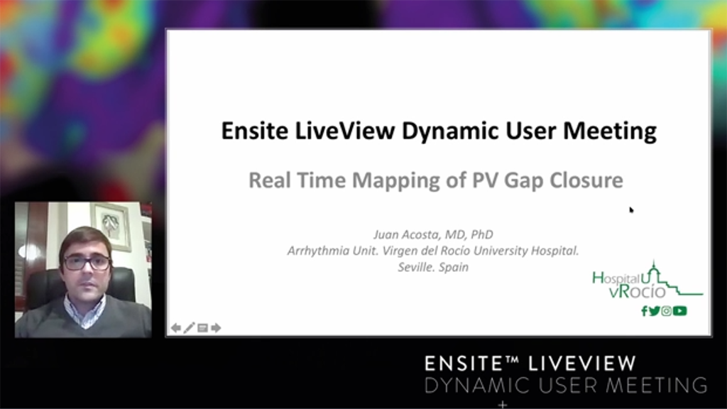 Live Dynamic Visualization of the Pulmonary Veins and the advantage of HD Mapping in comparison to the Standard Circular Catheter