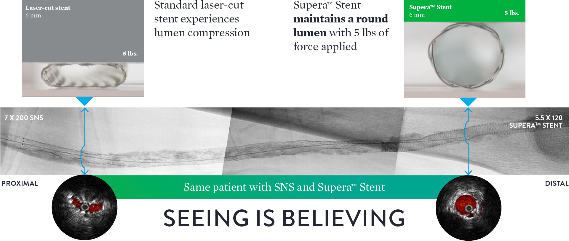Supera™ Stent offers unparalleled compression resistance