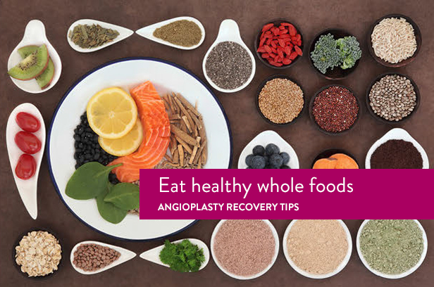 angioplasty recovery healthy diet