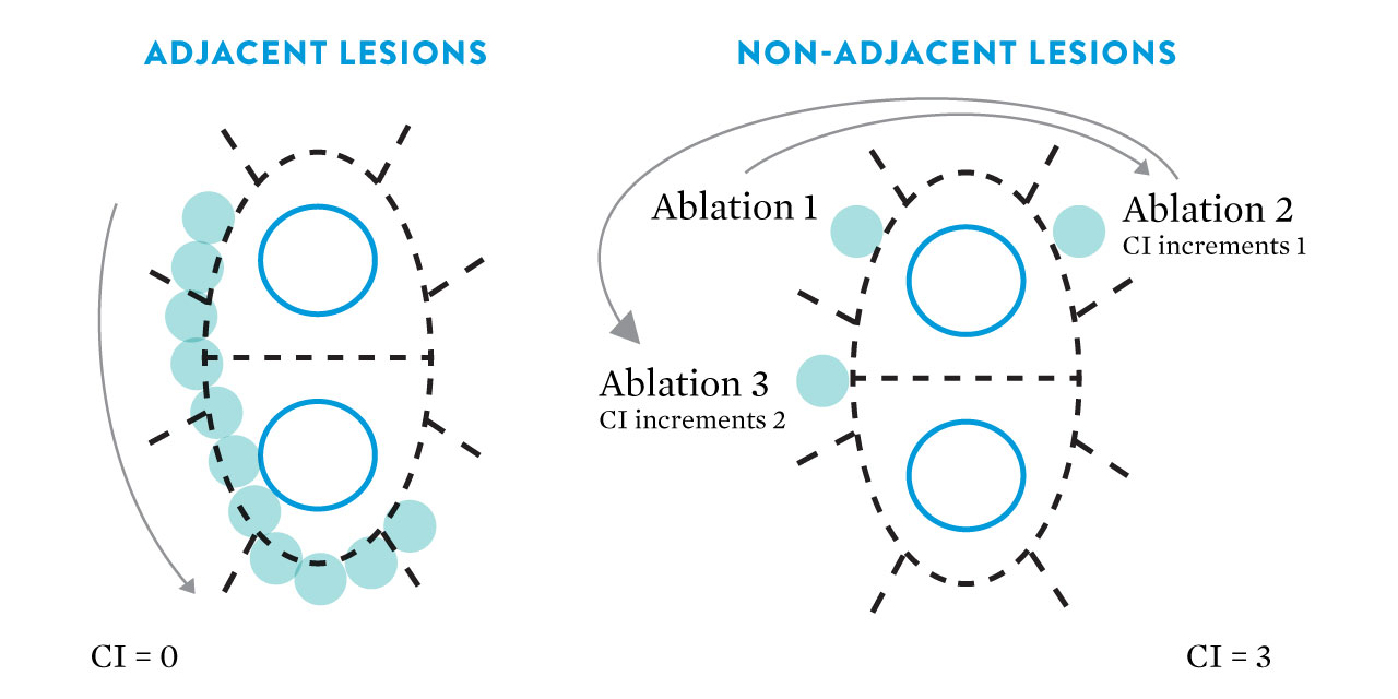graphic showing adjacent versus non-adjacent lesions
