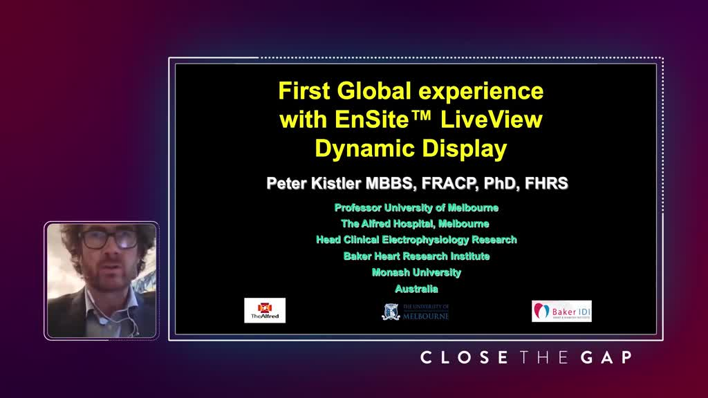 First Global Experience with EnSite(tm) LiveVIew Dynamic Display