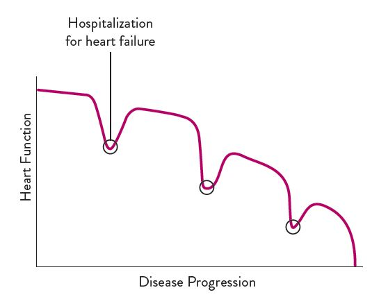 Chart showing heart failure disease progression