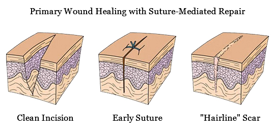 Perclose ProGlide™ suture-mediated repair promotes healing and decreases time to hemostasis