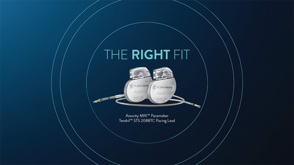 The Right Fit - A lasting fit for your patients