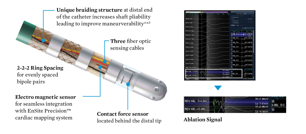 TactiCath Contact Force Ablation Catheter, Sensor Enabled