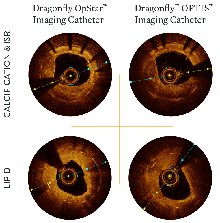 Dragonfly OpStar imaging catheter provides brighter images