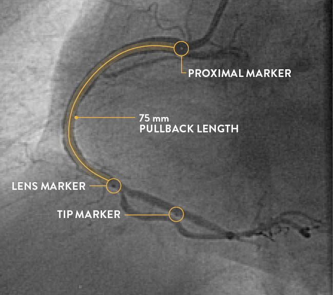 Dragonfly OpStar imaging catheter marker location compared to Dragonfly OPTIS imaging catheter