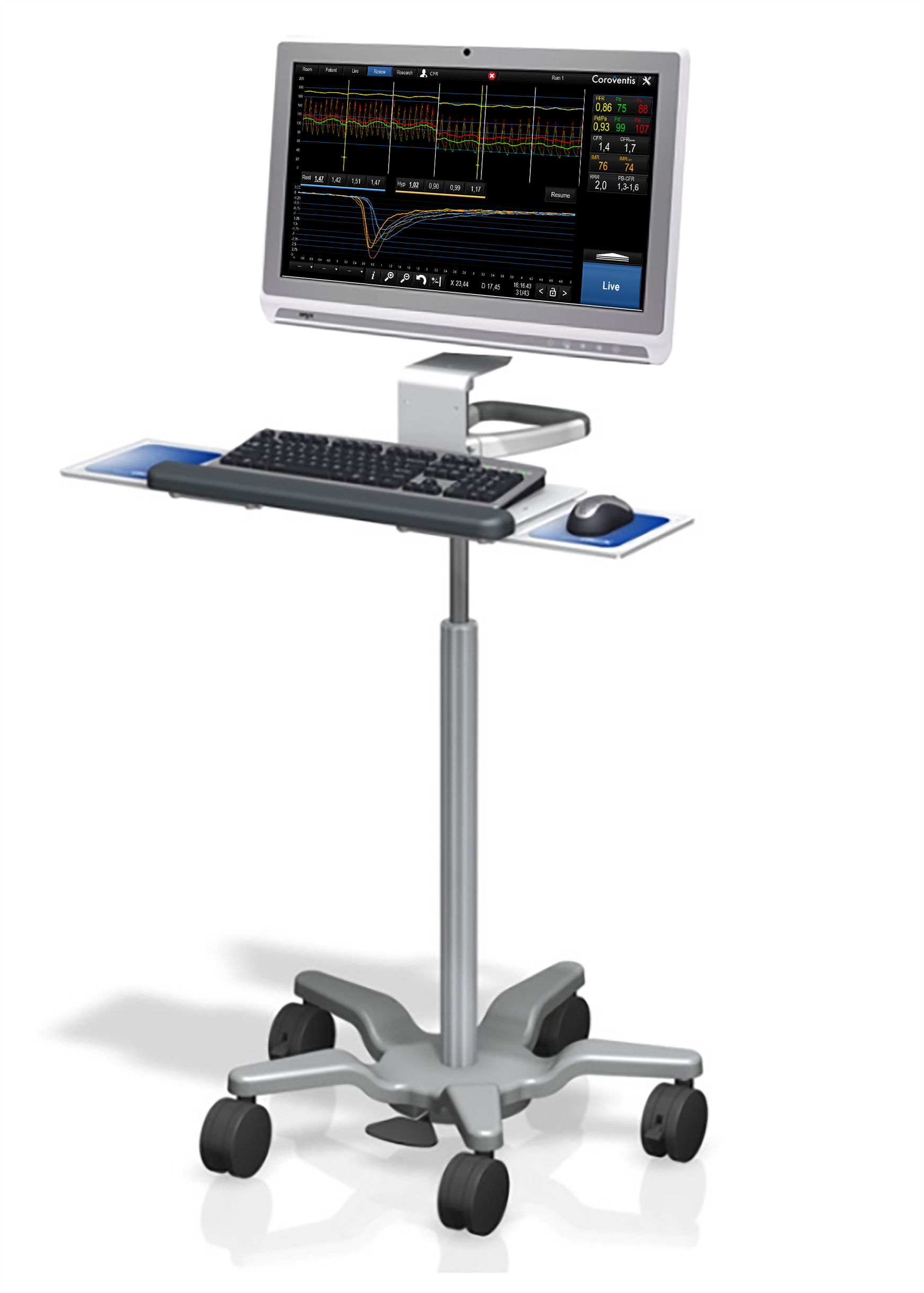 Coroventis‡ CoroHub‡ System with mobile cart for use in multiple rooms