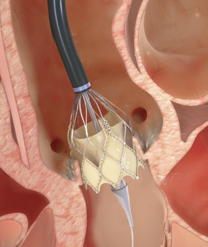 Portico inserted into aortic valve