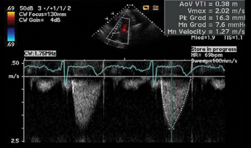 low pressure gradients for Trifecta aortic valve