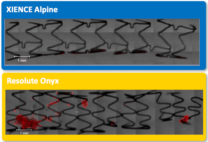 Alpine: no thrombus areas vs Resolute Onyx