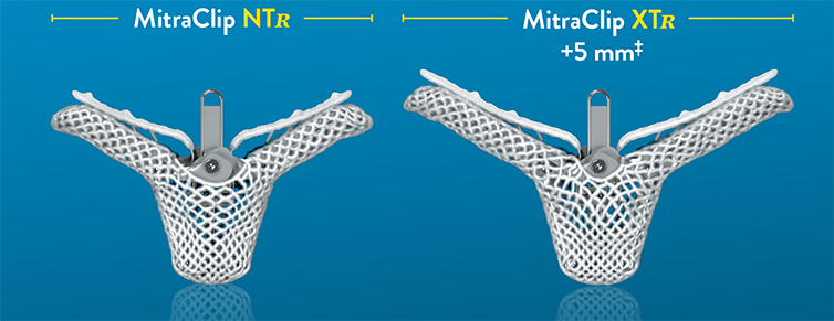 MitraClip NTR and MitraClip XTR