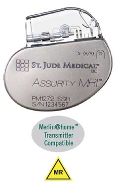 Assurity MRI | Merlin@home Compatible | MR Conditional