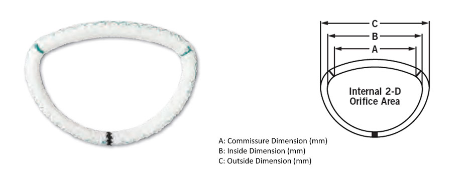 SJM™ Séguin Semi-Rigid Annuloplasty Ring